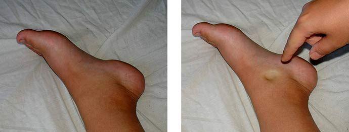 Болки в краката - как да си направим преглед сами - Фактор